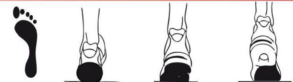 Пример положения нормальной стопы при ходьбе